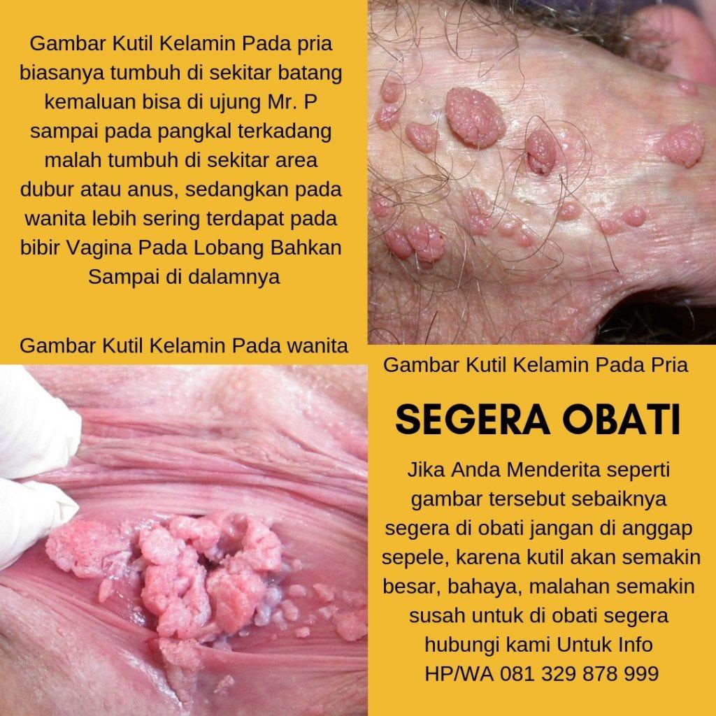 human papillomavirus in the cervix