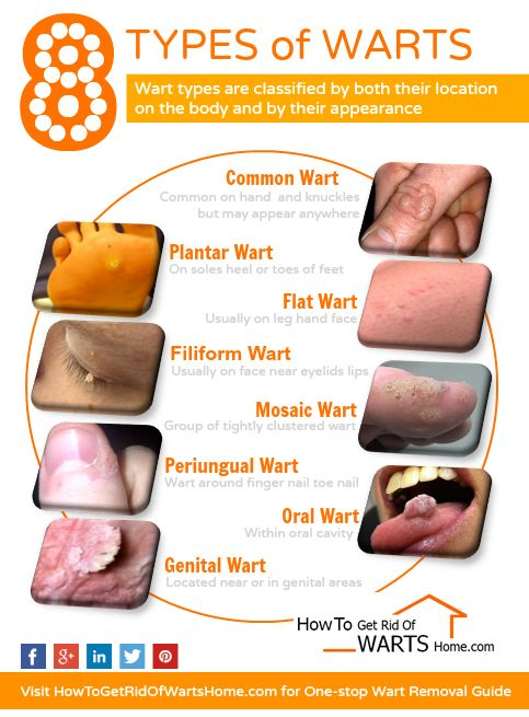 hpv type of warts