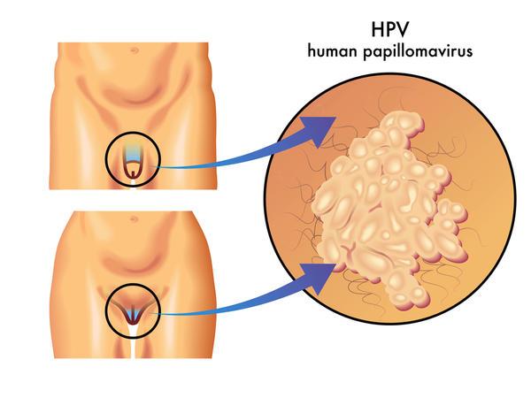 hpv warts pus