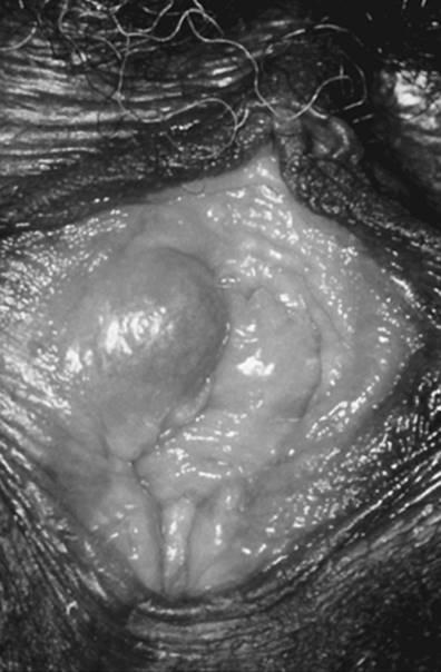 el virus del papiloma humano se contagia por saliva papiloma humano en la boca como se contagia