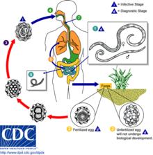 helminth disease in man