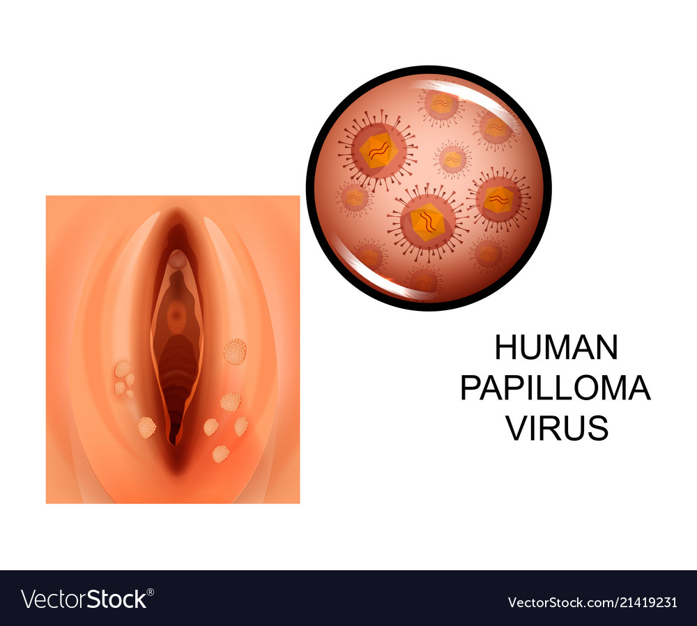 papillomavirus in females