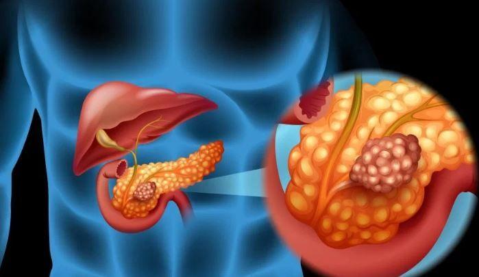 Pancreatita ereditara-risc crescut de a dobândi cancer pancreatic