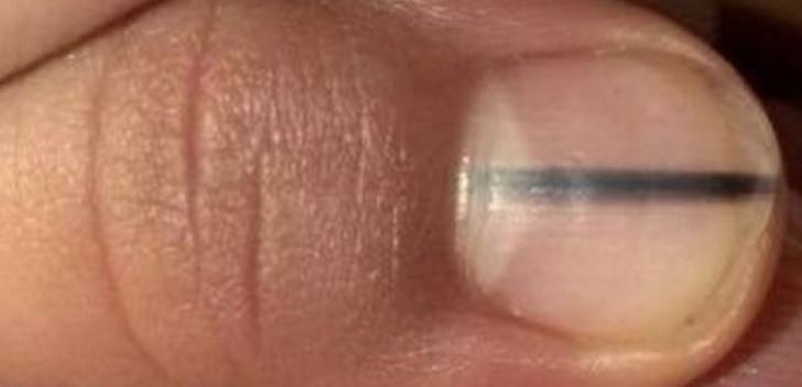 Semnul de pe unghii care trădează cancerul de plămân | DCNews
