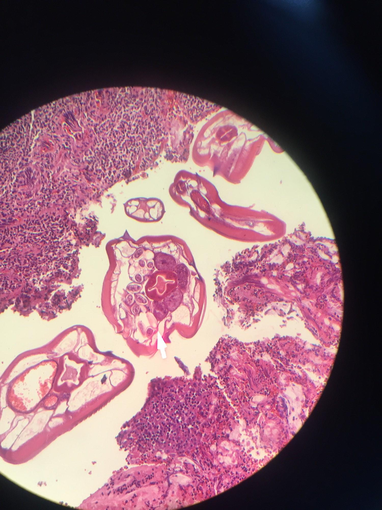 enterobius vermicularis histology