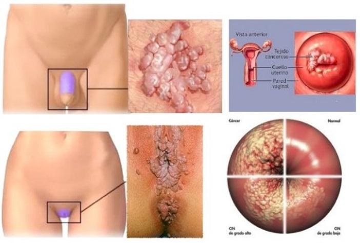virus del papiloma en la mujer human papillomavirus ne demek