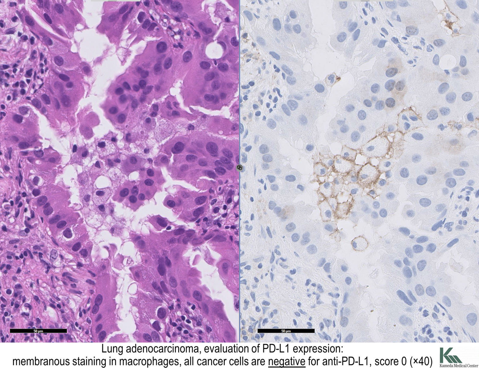 cancer pulmonar adenocarcinoma cancer y sarcoma