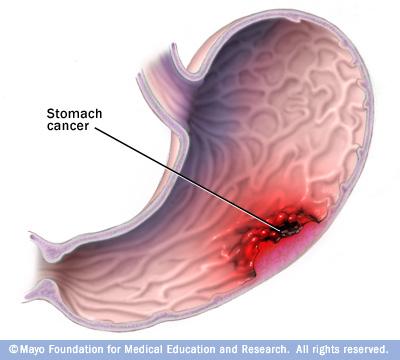 gastric cancer diarrhea