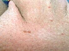 papillomavirus homme gorge symptomes cancer de col uterin chimioterapie