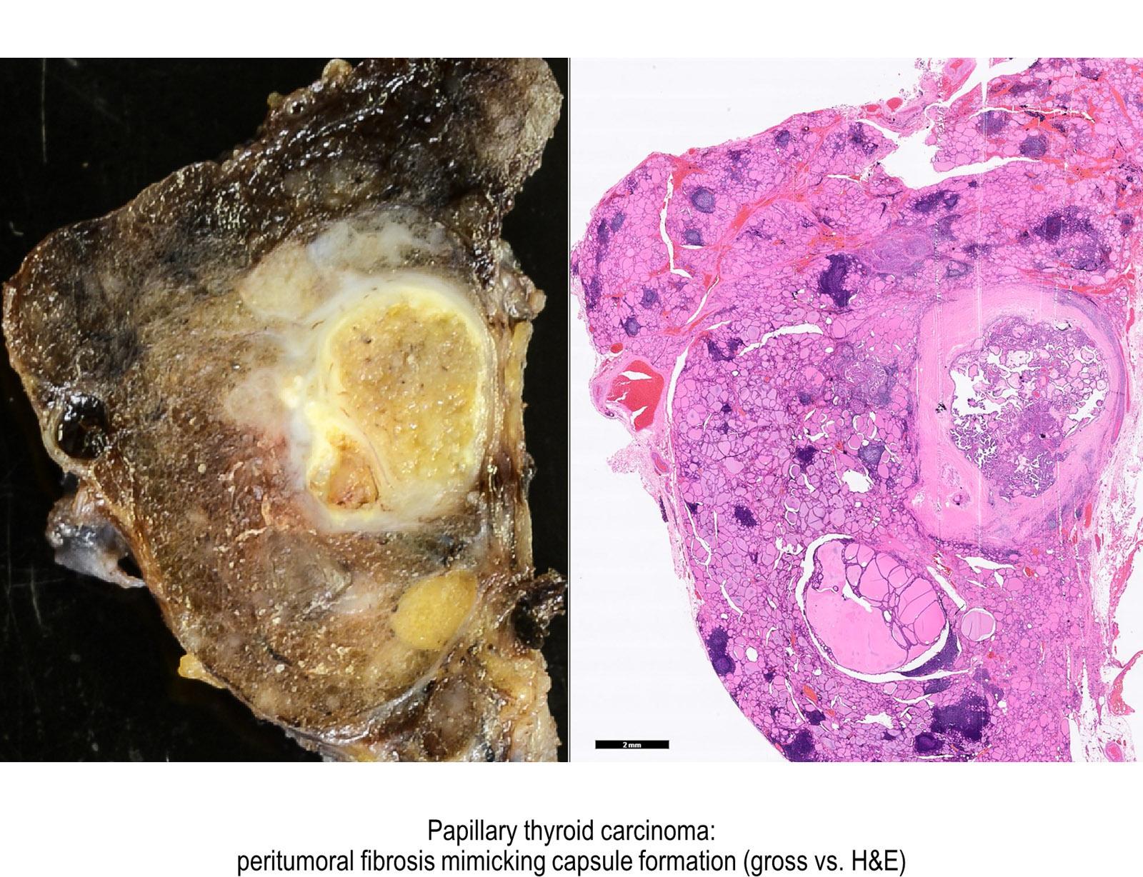 papilloma carcinoma tiroideo papilloma virus verruche piane