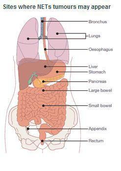 Hiperplazie limfatică cancer de ileum