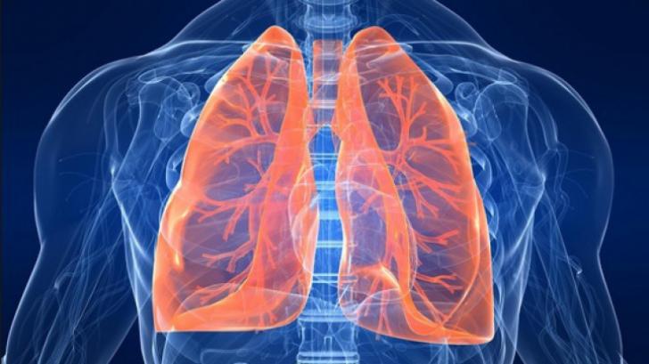 cancer la plamani ultima faza smoothie uri pt detoxifiere