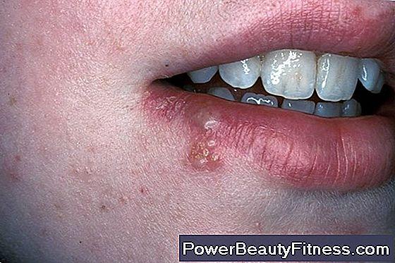 papilloma virus nella gola sintomi