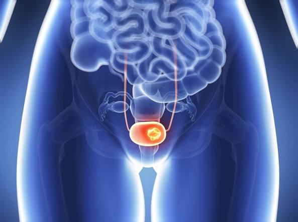papilloma vescica cura el virus del papiloma y el embarazo