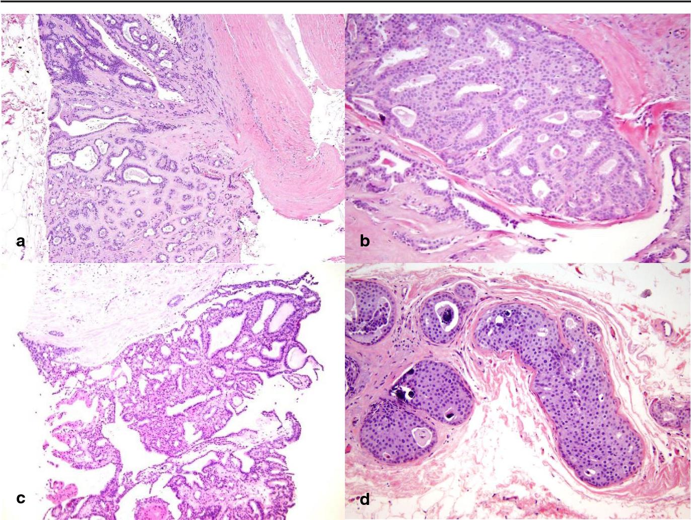 papilloma intraductal carcinoma