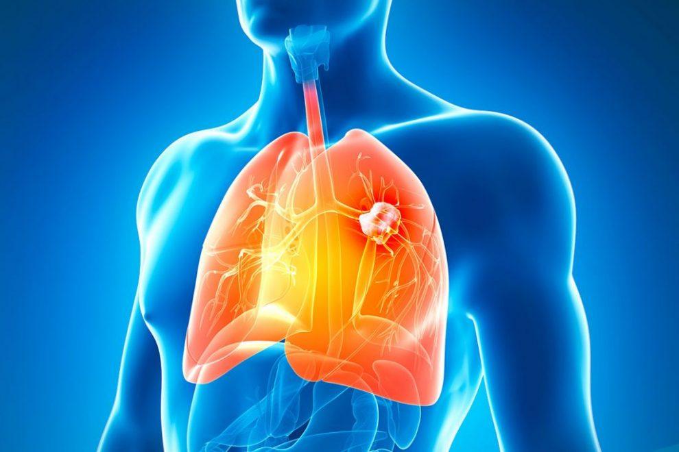5 cauze ale aparitiei cancerului pulmonar la nefumatori