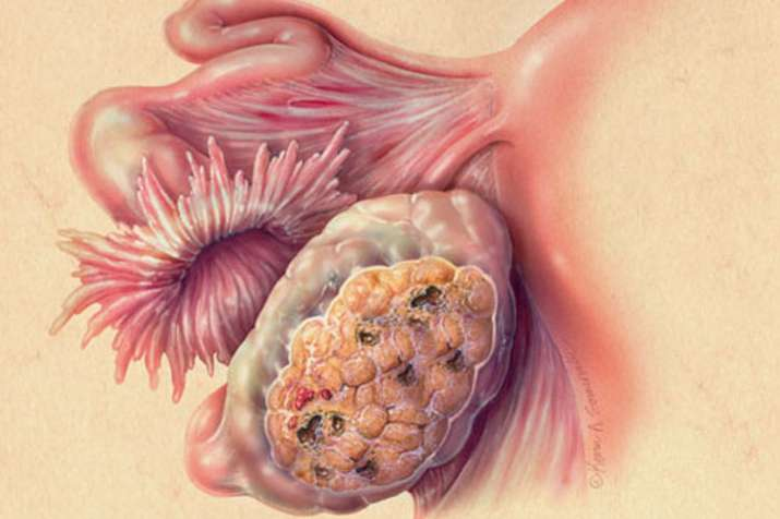 ovarian cancer kya hota hai