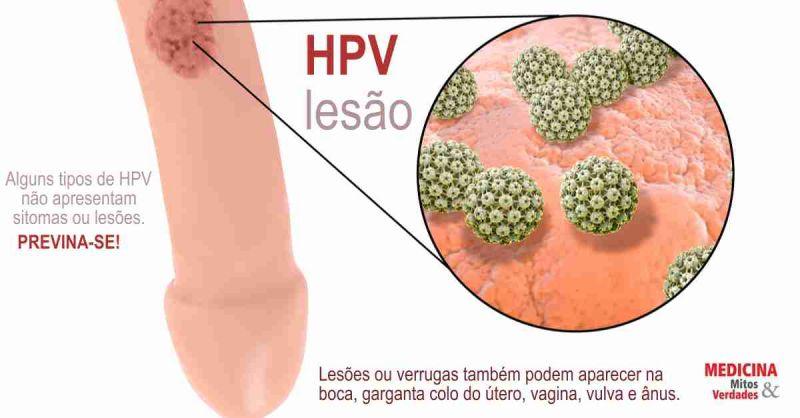 hpv autoimmune disease papiloma humano unam