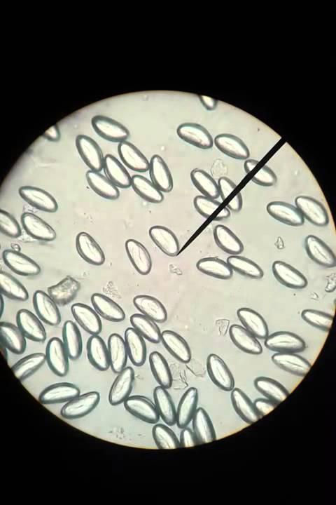 laryngeal papillomas genital warts papilloma virus si trasmette