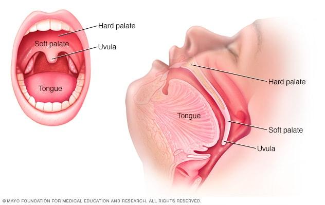 papiloma uvula causas