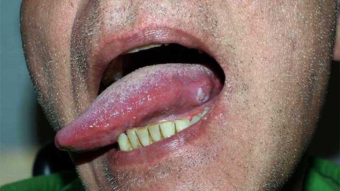 detoxifiere simptome usturoi fiert in lapte pentru paraziti
