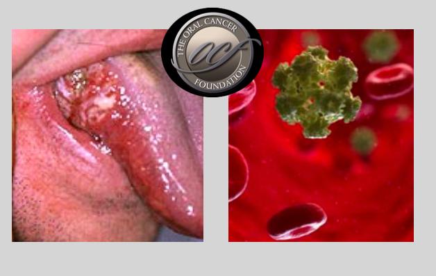 virus papiloma humano leve nasal exophytic papilloma