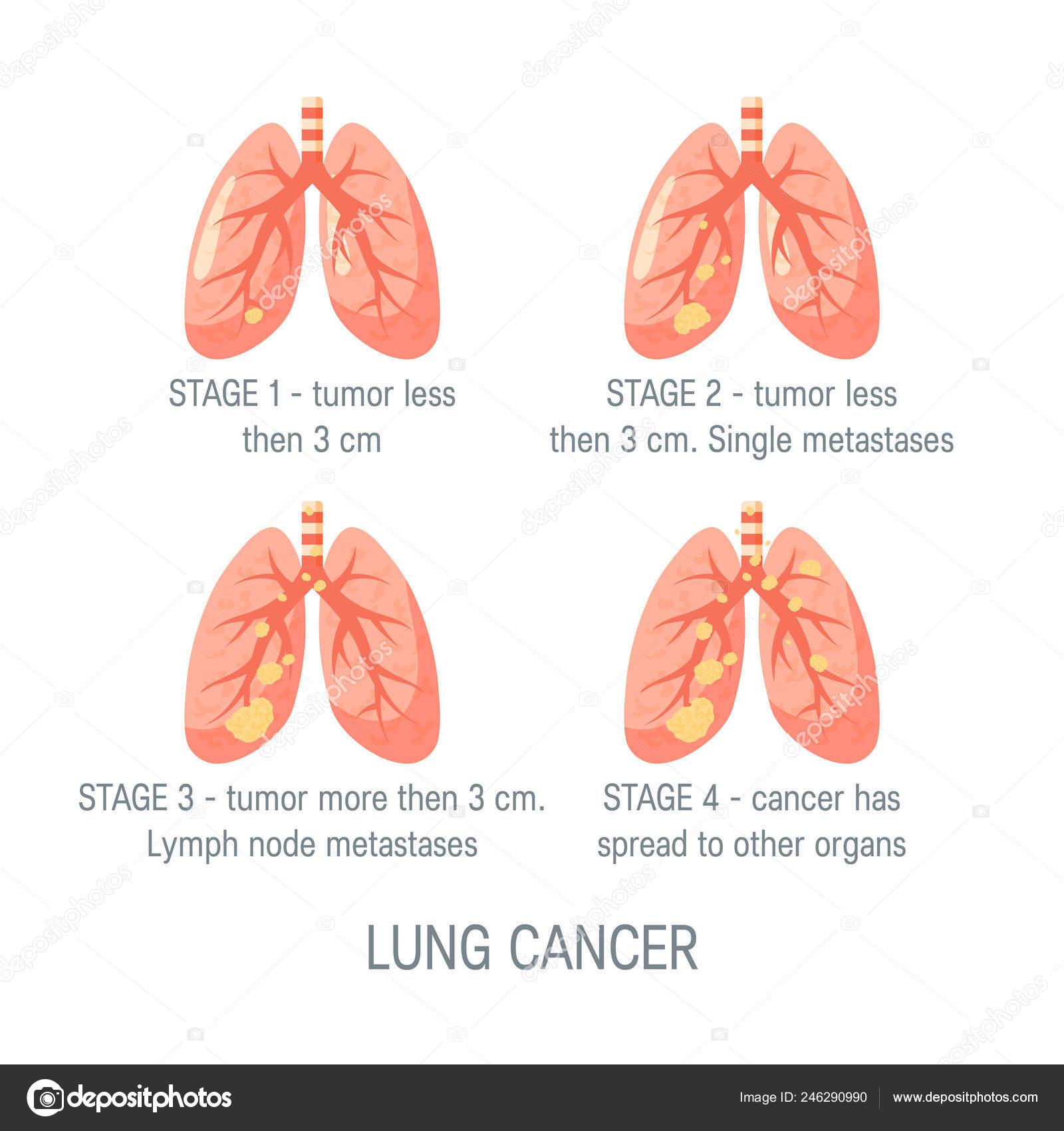 cancer pulmonar nsclc