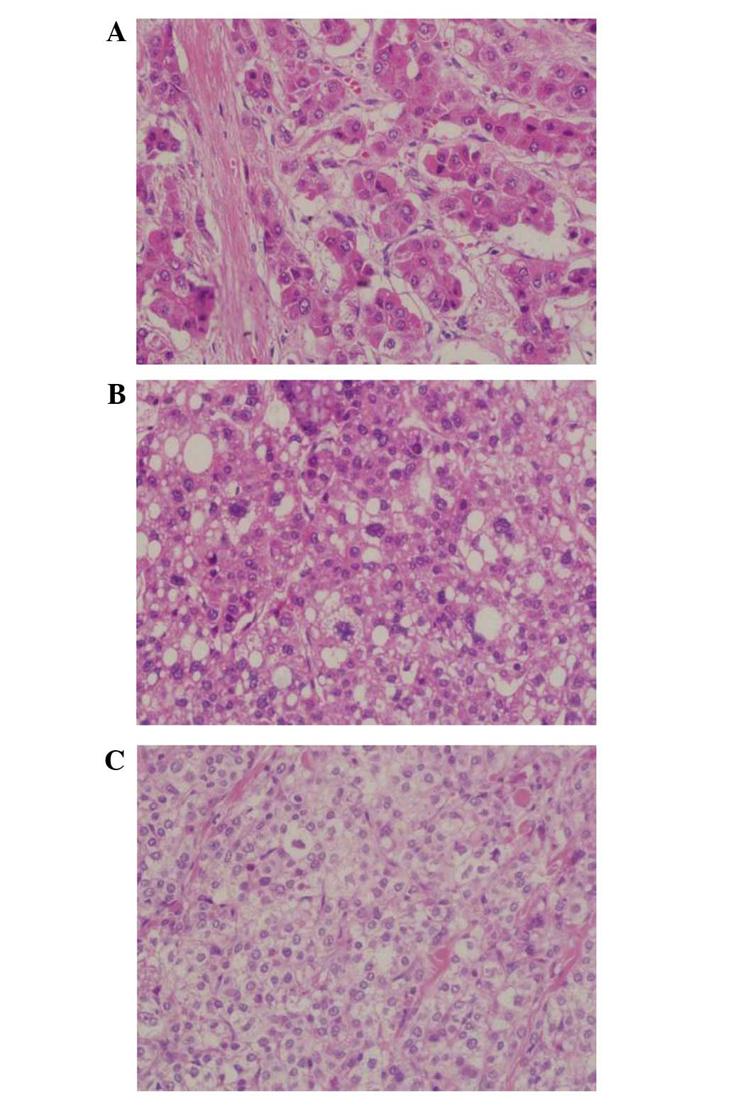 aggressive cancer symptoms paraziti in sange simptome
