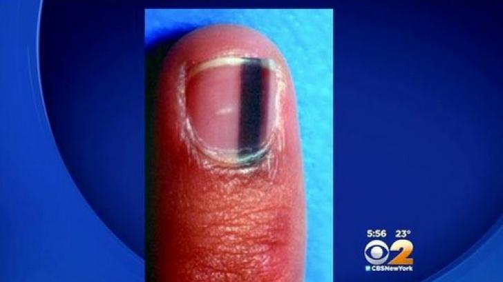 Manichiura cu gel ar putea să provoace cancer de piele, avertizează medicii - ghise-ioan.ro