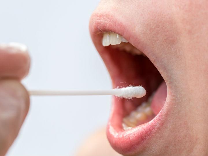 papiloma humano en la boca