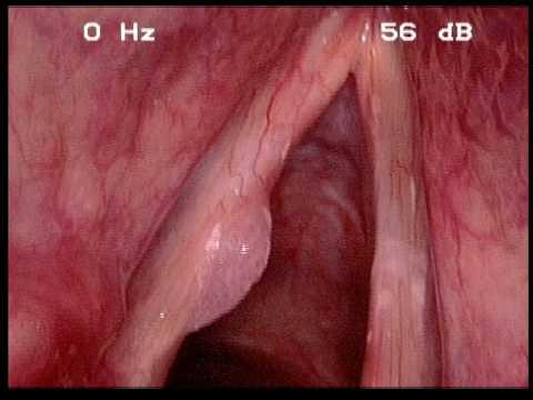 Noduli pe laringe
