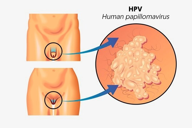 virus hpv tiene cura