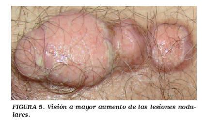 Obstrucția uretrală - ghise-ioan.ro