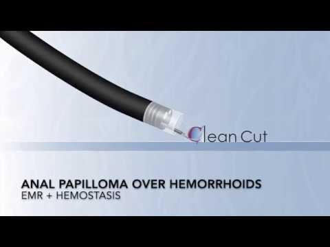 squamous papilloma colonoscopy cancer vesicula biliar etapa 4