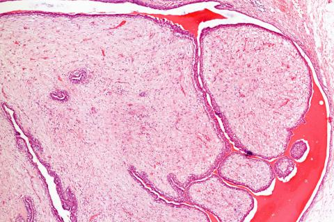 neuroendocrine cancer macmillan