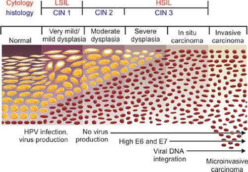 hpv virus cin 3