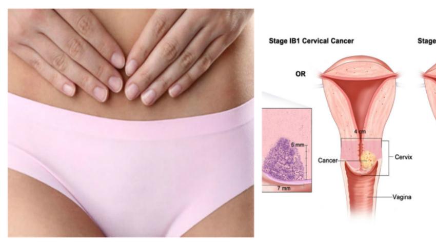cancer col uterin barbati simptome