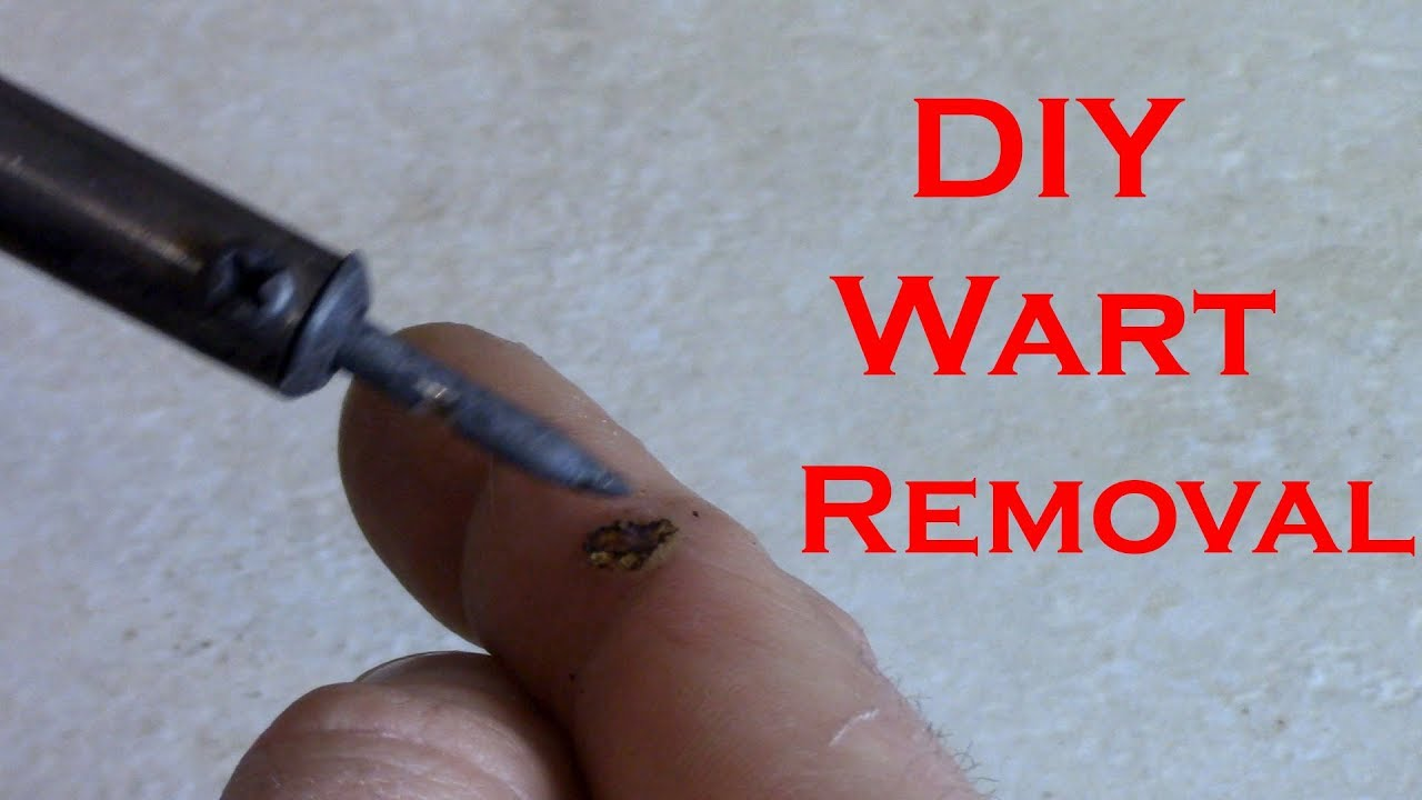 warts on hands you tube