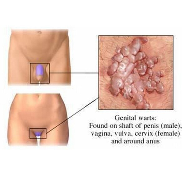sare amara pt detoxifiere cancer pancreatic stage 4