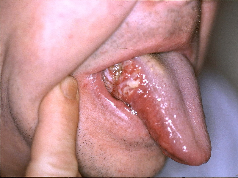 hhh | Cervical Cancer | Oral Sex
