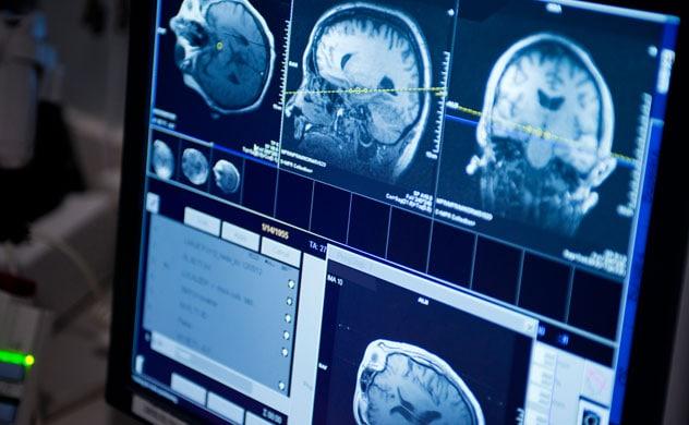 cancer cerebral tratamientos alternativos oxiuros resistentes
