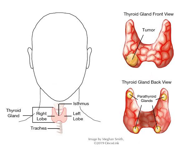 hpv and papillary thyroid cancer