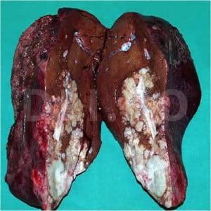 cancer ficat metastaze simptome
