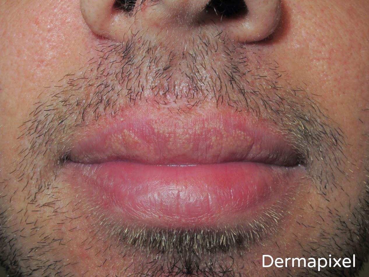 papiloma en los labios dela boca tratamiento
