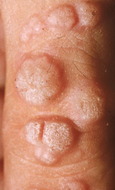 verruca vulgaris foot