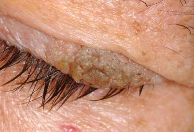papillomas under eyelid