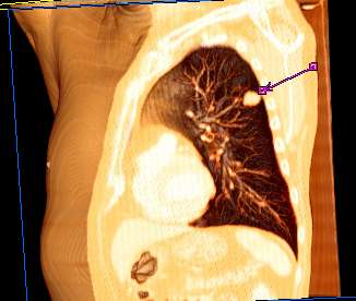cancer pulmonar ia