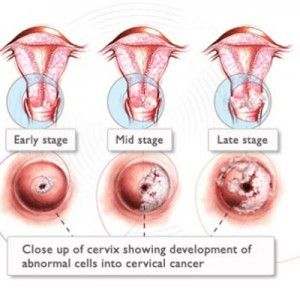 hpv and throat cancer symptoms