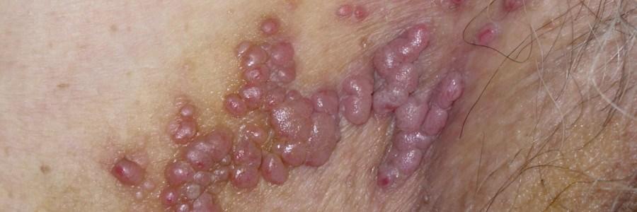 hpv virus warzen entfernen papiloma laringeo sintomas