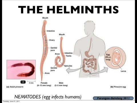 define helminths in microbiology squamous papilloma case report and review of literature